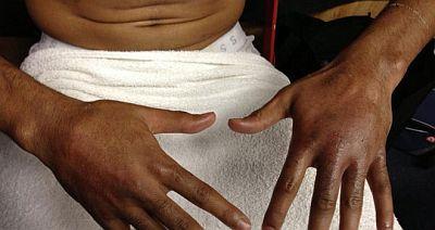 Dua jari kiri Amir Khan retak. (Foto: Sky Sport)