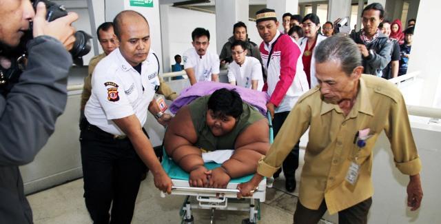 Gawat, Tren Obesitas di Indonesia Meningkat!