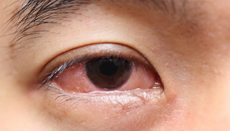 7 Penyebab Mata Merah yang Harus Anda Tahu
