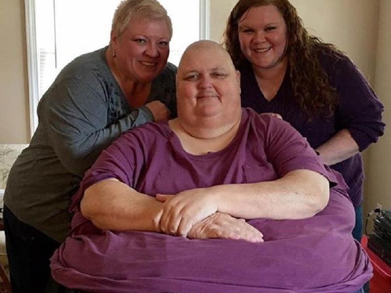 ALAMAK! Pria Ini Punya Tumor Seberat 57 Kg di Perutnya