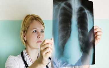Alasan Orang Kurus Rentan Penyakit Paru-Paru