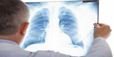 Mengetahui Perbedaan Bronkitis dengan Pneumonia