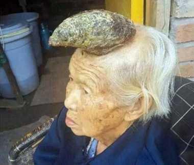 Nenek asal China Miliki Tanduk Sepanjang 5 Inci