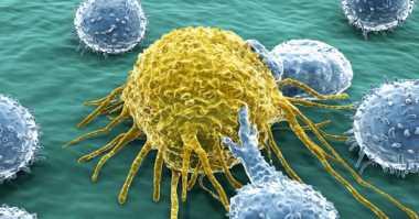Inilah Model Terbaru Terapi untuk Penderita Kanker