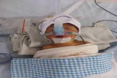 Kondisi Bayi Afrizal Kritis di Rumah Sakit Pirngadi Medan