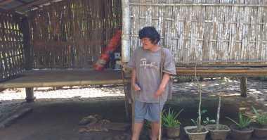 Miris, Pengidap Syndactyly Tinggal di Gubuk Bambu Sendirian
