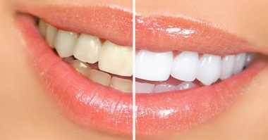 HOT THREAD (5): Luar Biasa! Begini Cara Memutihkan Gigi dalam Waktu Tiga Hari
