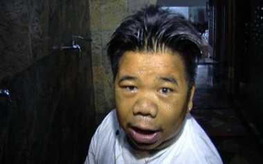 Hendrik Ceper Jatuh Sakit Diduga karena Sepi Tawaran Syuting