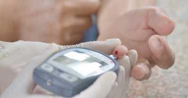 Ini Tiga Dampak Negatif Gula bagi Kesehatan Kulit
