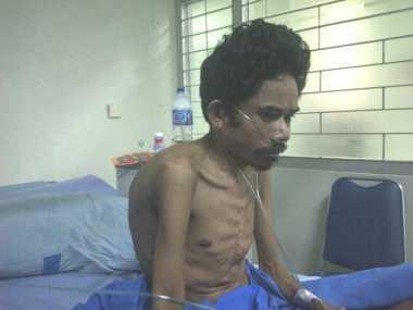 Kisah Pasien dari NTT harus Berobat ke Yogyakarta