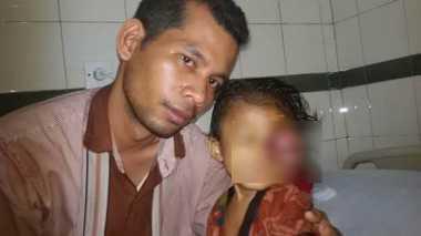 Bocah Penderita Kanker Mata Butuh Bantuan