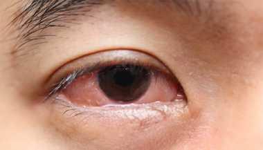 Mata Anda Sering Merah? Kenali Penyebabnya