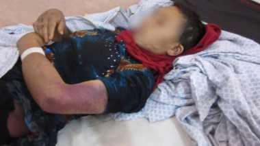 Pria Afghanistan Mutilasi Kelamin Istrinya yang Sedang Hamil