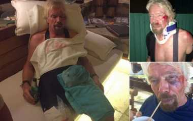 Kecelakaan Saat Bersepeda, Miliarder Richard Branson 'Nyaris Mati'