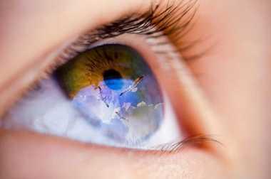 Ini Gangguan Penglihatan yang Bisa Menjadi Tanda Migrain