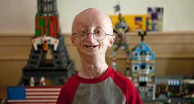 Penderita Sindrom Progeria Rentan Terkena Penyakit Kardiovaskular