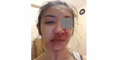 Saori Wanita Cantik Korban Penganiayaan Sudah Dua Hari Jalani Perawatan