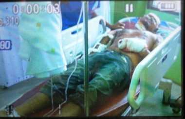 Ini Napi yang Menjadi Korban Ledakan Bom di Lapas Lhokseumawe