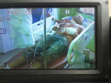 Ledakan di Lapas Lhokseumawe, Tangan Fauzi Nyaris Putus