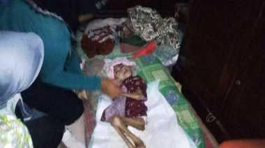 Menderita Gizi Buruk, Bocah di Bogor Butuh Pertolongan