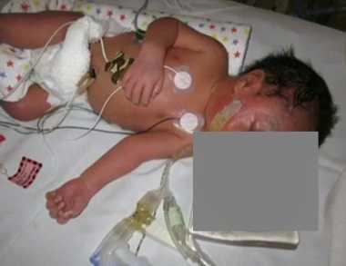 ASTAGA! Bayi di Australia Lahir dengan Otak di Luar Cangkang Kepala