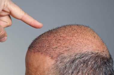 Transplantasi Rambut untuk Kebotakan, Seperti Apa Ya?