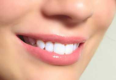 Teknik Memutihkan Gigi Modern dengan Veneer, Mau?