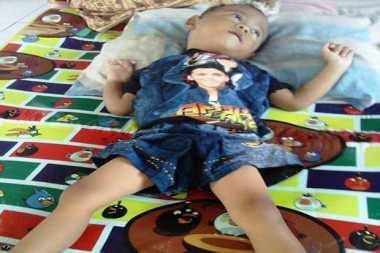 Lagi, Balita Penderita Gizi Buruk Ditemukan di Pangandaran
