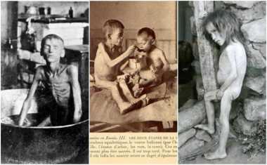 KISAH: Didera Kelaparan Parah, Lima Juta Warga Rusia Tewas di Awal Abad 20