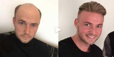 Kocak! Cowok Botak Jadi Ganteng Maksimal Kalau Pakai Wig