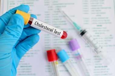 Kapan Waktu yang Tepat untuk Mengecek Kolesterol?