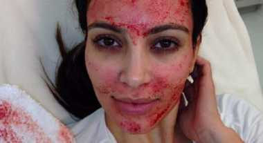 Facial Darah hingga Diet Cacing Pita, Perawatan Kecantikan Tersadis di Dunia