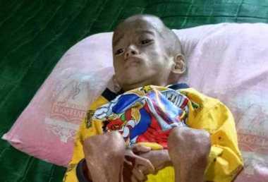 Tolong, Anak Yatim Piatu Asal Bekasi Ini Miliki Gizi Buruk