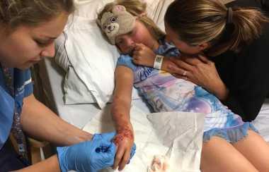 Ngeri! Tangan Bocah 7 Tahun Jadi Melepuh Gara-Gara Tato Henna