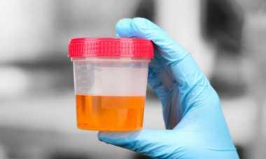 Waspada! Jika Urine Anda Berbusa Bisa Jadi Terkena Penyakit Jantung Lho