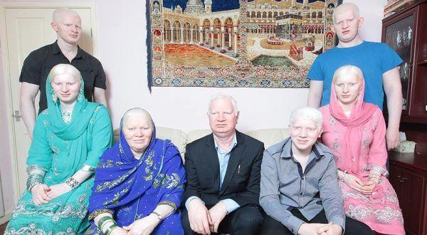 Satu keluarga albino...