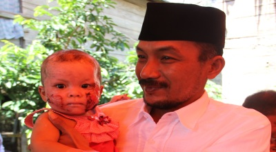 Bupati Luwu Timur menggendong Nurfaidah (Foto: Koran SI/Chaerul Baderu)
