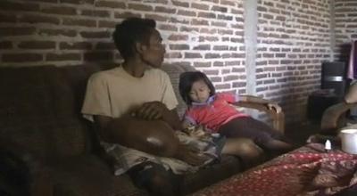 Herman, penderita tumor di Nganjuk (Dok: Sindo TV/Mukhtar Bagus)