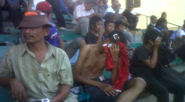 Suporter PSIS yang terluka saat bentrok dengan warga (Foto: Timotius/okezone)