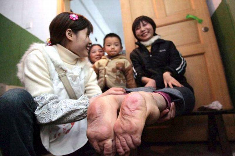 Perempuan China Lahir dengan Kaki Terbalik