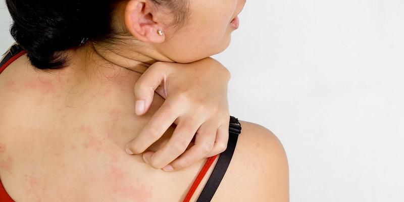Umumnya, orang sering tidak sadar bahwa mereka memiliki jerawat di punggung.