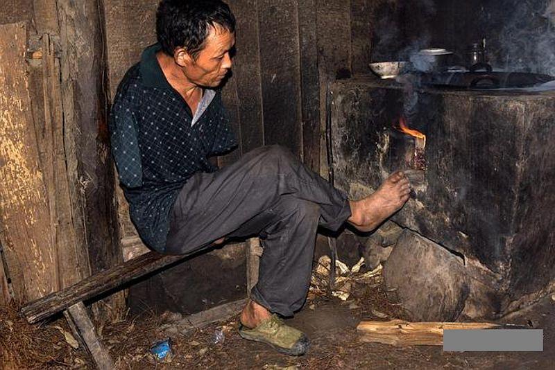 Chen Xinyin mengurus ibunya tanpa tangan. (Foto: Oddity)