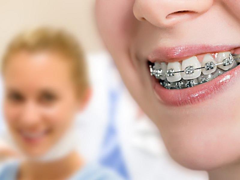 Anda pun harus bersiap merasakan gigi senat-senut lebih lama. Supaya perawatan ortodontik Anda berjalan optimal.
