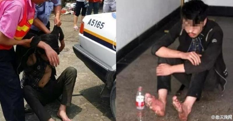 Kaki remaja di China membusuk setelah menghabiskan enam hari berturut-turut di warnet (Foto: Shanghaiist)