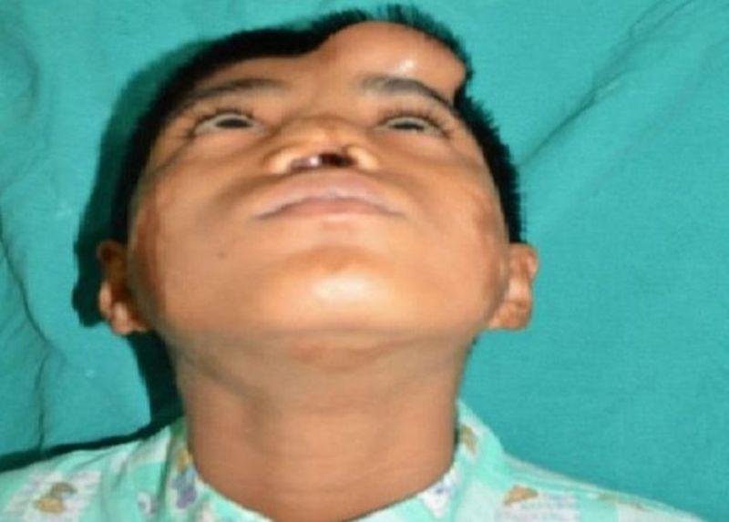 Arun Patel saat hidungnya masih di dahi. (Foto: S Niazi)