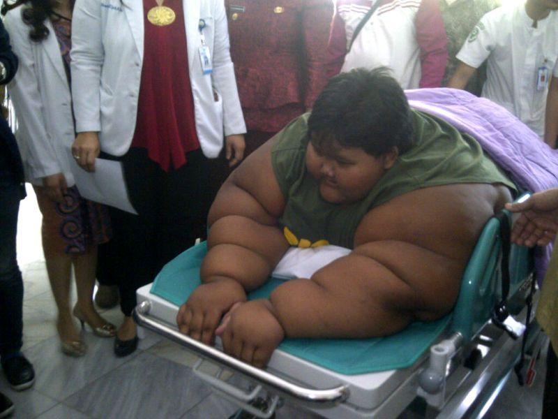 Kurangi Porsi Makan, Bocah Obesitas Asal Karawang Konsumsi Buah