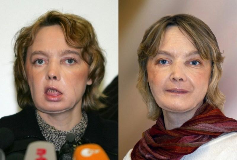 Pasien transplantasi wajah pertama di dunia, Isabelle Dinoire, meninggal akibat kanker (Foto: Denis Charlet/AFP)