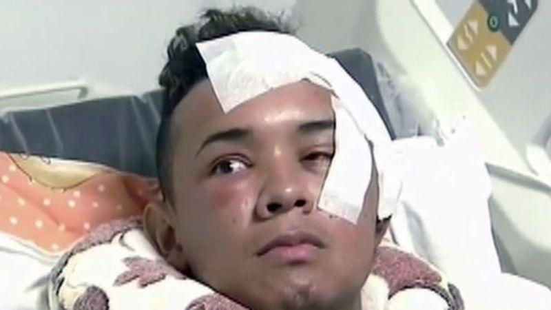 Alberto menjalani operasi dengan pisau tertancap di kepalanya. (Foto: Mirror)
