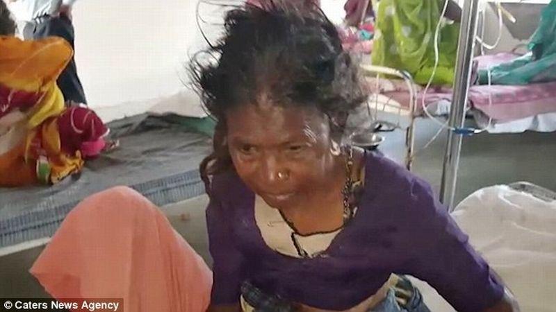 Foto Bai ketika dirawat di rumah sakit usai terhempas akibat diseruduk sapi (Foto: Caters News Agency)
