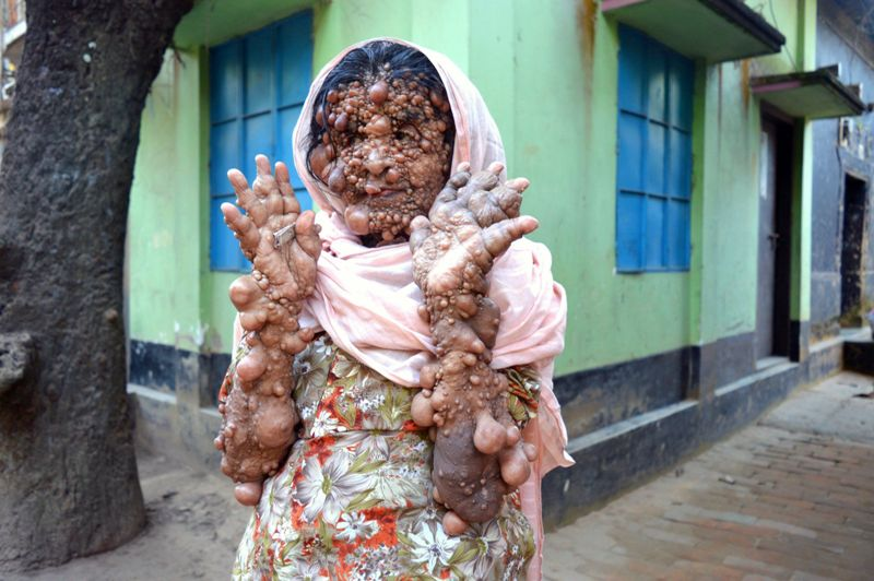 Hosineara Begum dari Bangladesh. (Foto: Caters News via Metro)